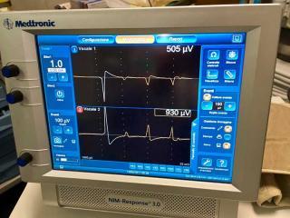 Il Neuromonitoring utilizzato all'Ospedale di Terni